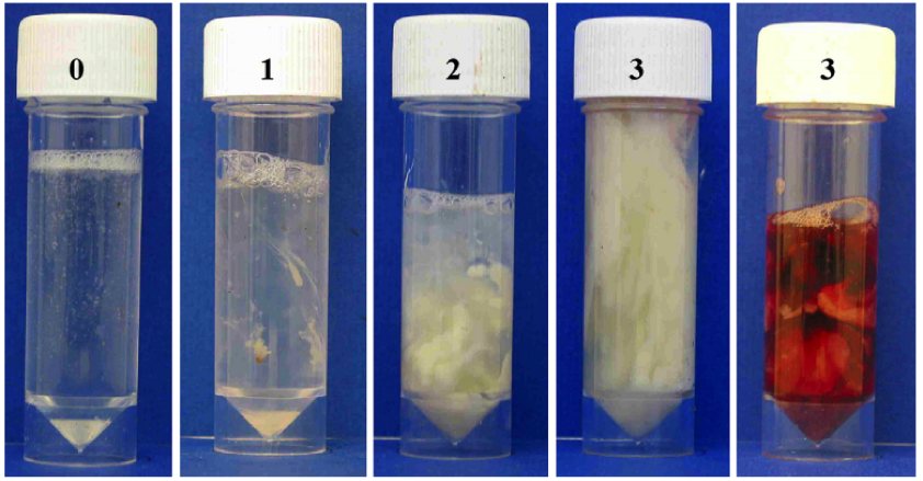 Five samples of vaginal discharge with associated scores