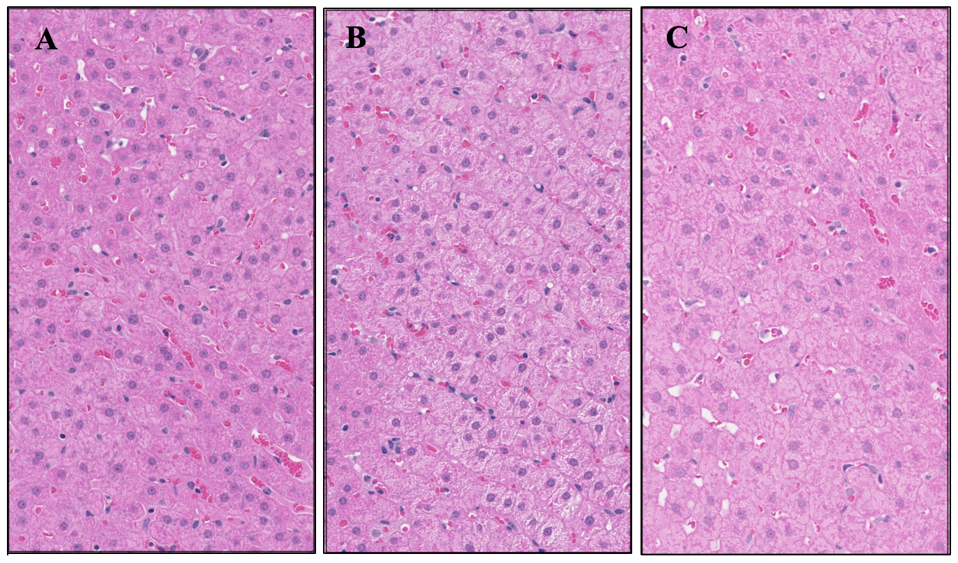Liver histology slides used to measure inflammation.